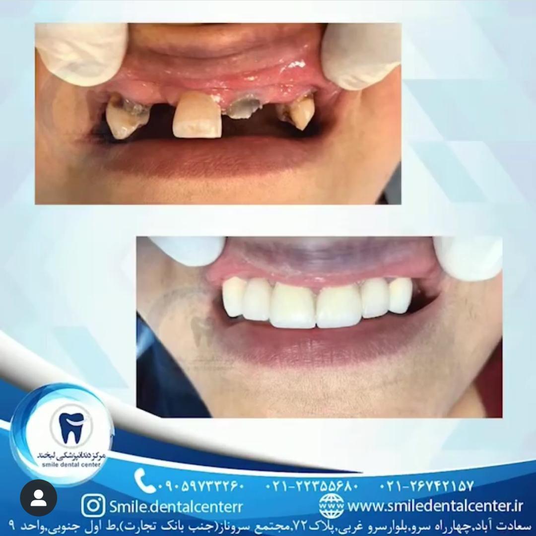 کلینیک دندانپزشکی لبخند،جراحی ایمپلنت پیشرفته،درمان ریشه،ترمیم دندان و ...