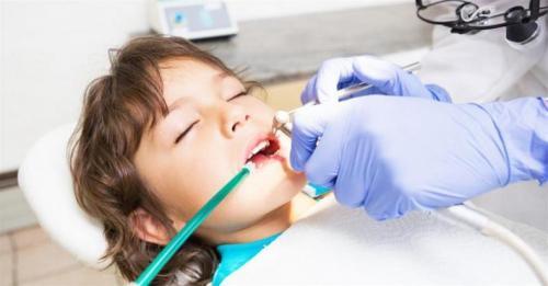 تولید سر ساکشن دندانپزشکی یک بار مصرف