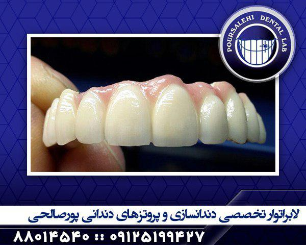 دندانسازی در تهران