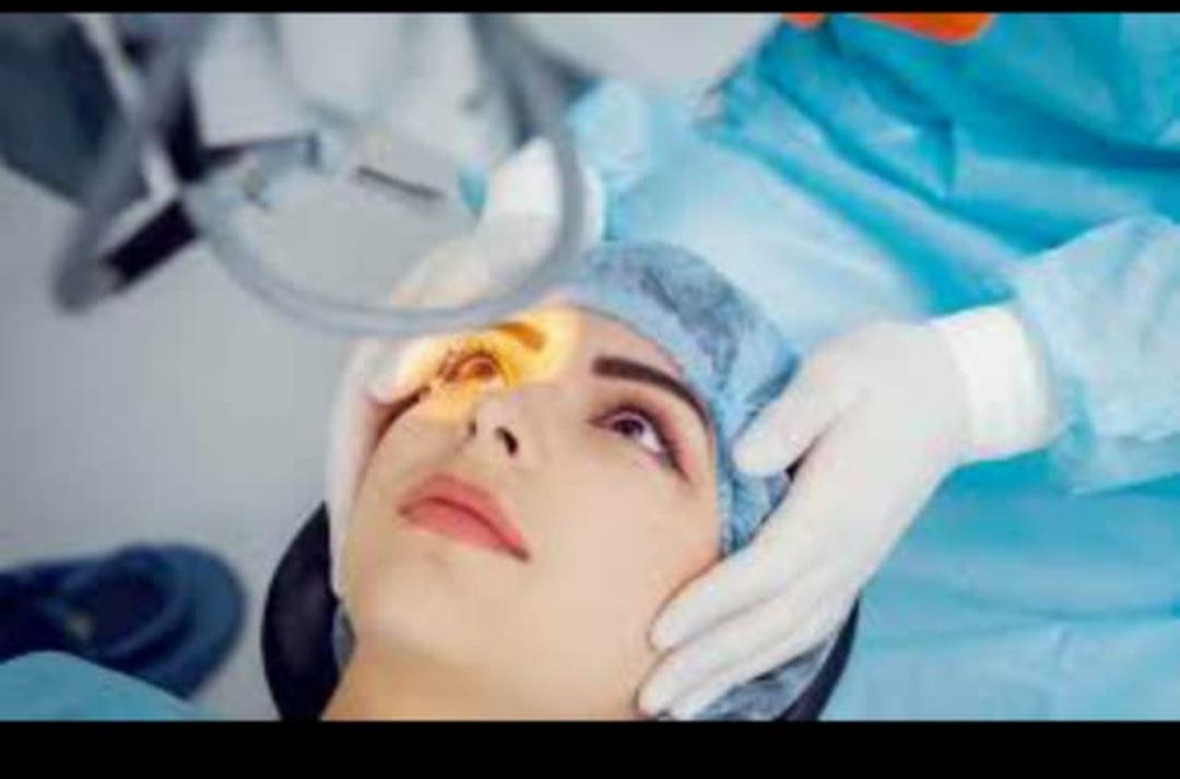 نواع عمل چشم برای برداشتن عینک