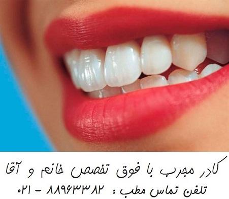 خدمات دندانپزشکی زیبایی سفید کردن دندان طراحی لبخند هالیوودی