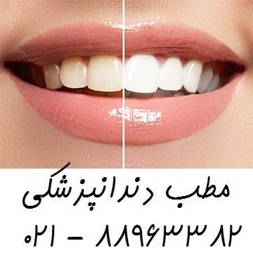 بهترین متخصص جراحی لثه جراحی دندان عقل